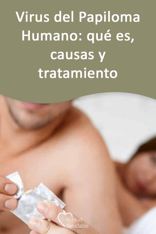 virus del papiloma causas)