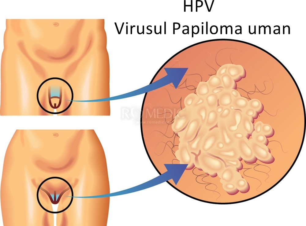 hpv genital tratament