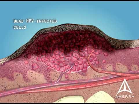 hpv genital warts lead to cancer papilloma virus entro quanto tempo si sviluppa