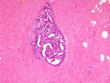 intraductal papilloma medscape