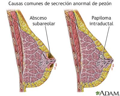papiloma intraductal en mama