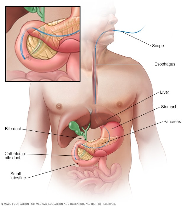 aggressive cancer of the bile duct)