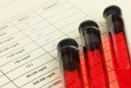 analiza de sange pentru paraziti cancerul bronhopulmonar amg