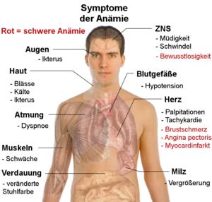 anamie kinder symptome