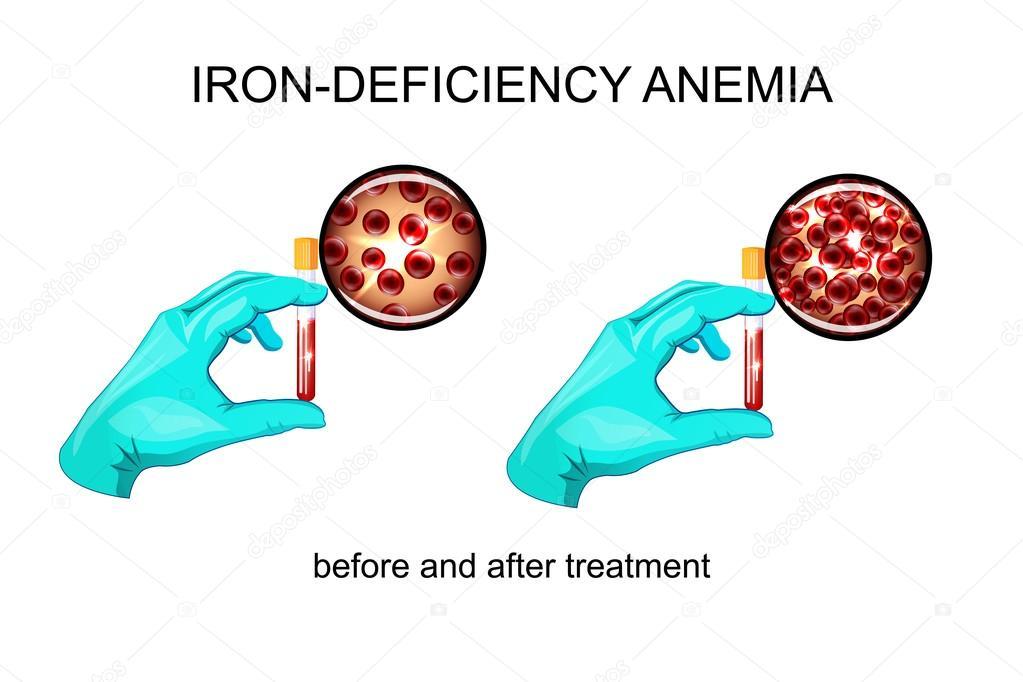 anemie z nedostatku zeleza