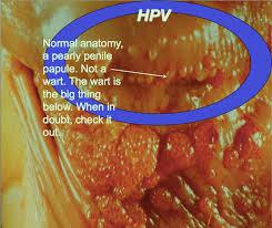 human papilloma virus pada wanita)