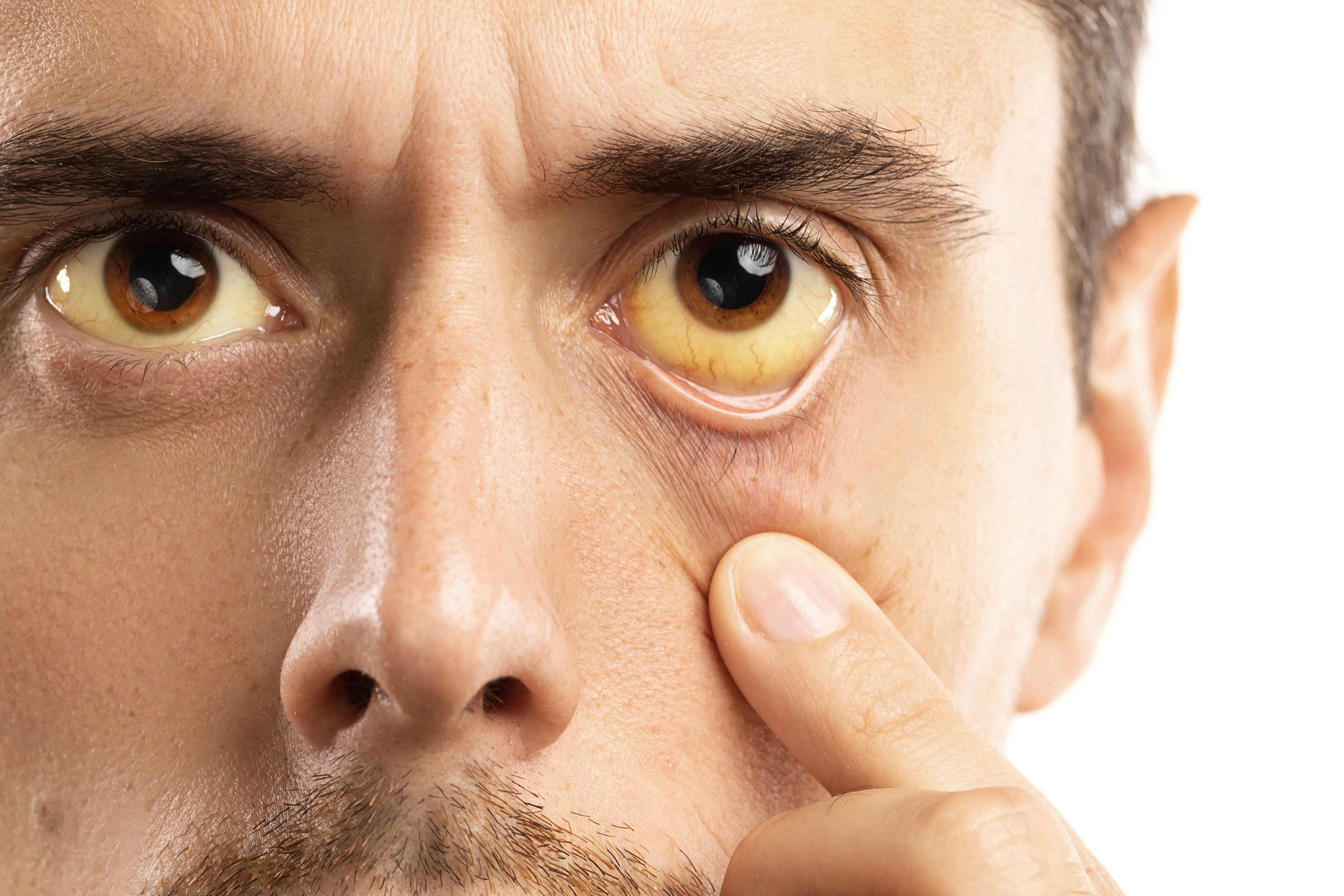 metastatic cancer eyes symptoms