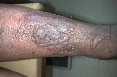 papillomatosis and lymphedema)