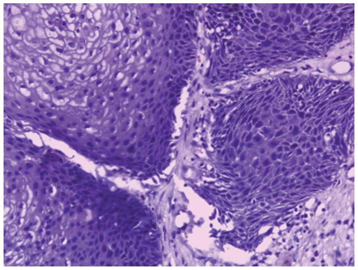 malignant inverting papilloma