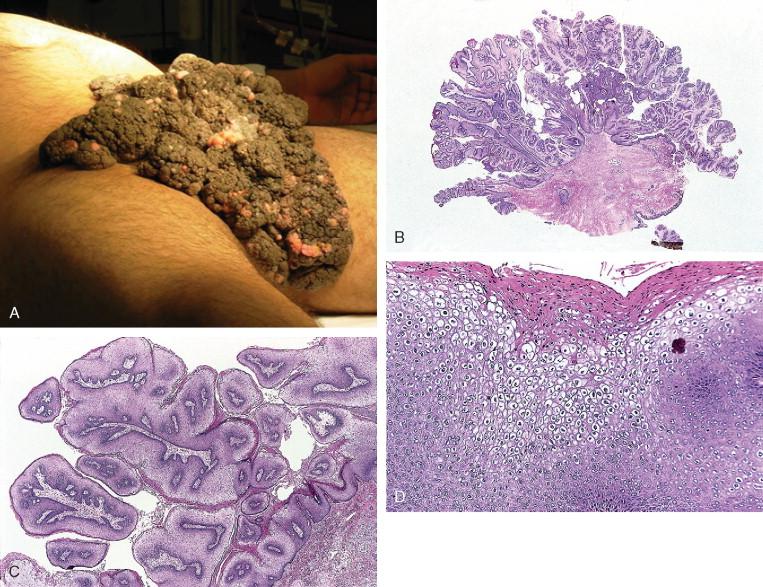 condyloma acuminatum definition