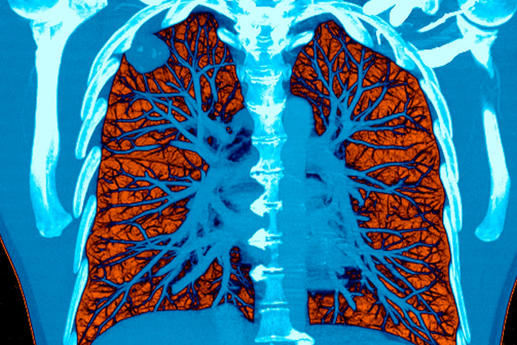 Broncograma aéreo   Radiology, Human body anatomy, Body anatomy
