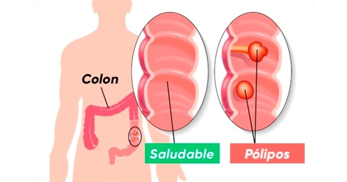 cancer de colon diarrea)