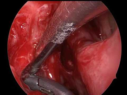 Cancerele sferei ORL: simptome și tratament