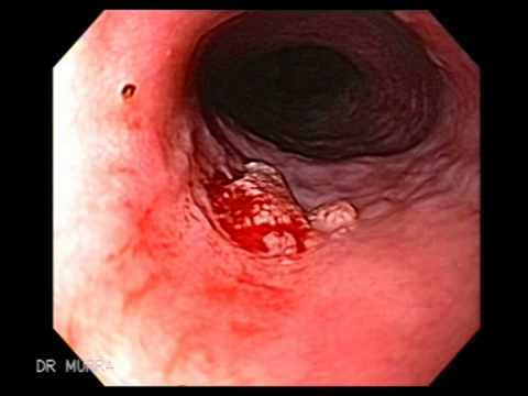 papilloma of esophagus)