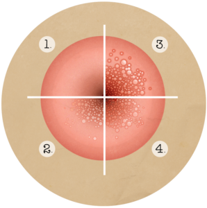 papillomavirus porteur a vie)