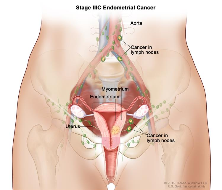 uterine cancer hysterectomy lymph nodes