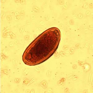 enterobius vermicularis roundworm)