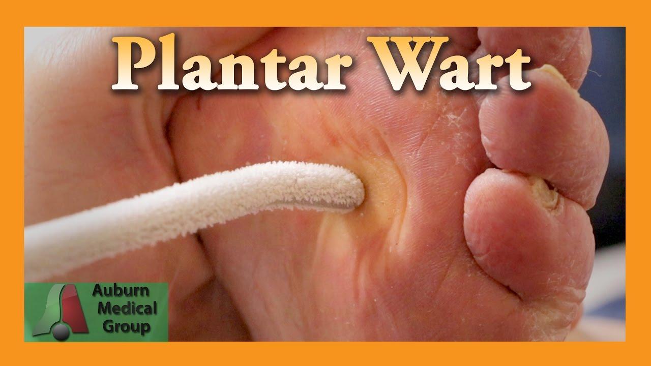 foot warts needle)