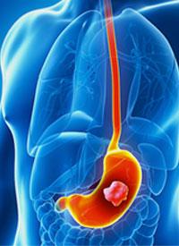 abdominal cancer surgery)
