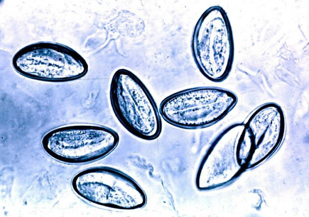 foot wart black spots infezione da papilloma virus nelluomo