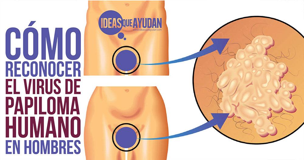 virus del papiloma humano en hombres sintomas