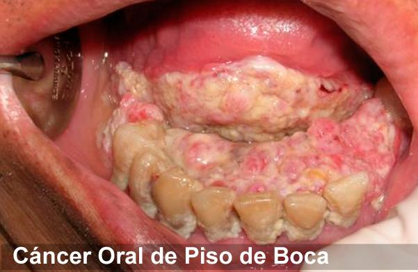 cancerul de planseu bucal)