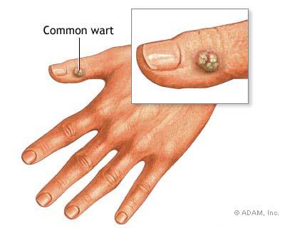 papilloma virus umano sintomi uomo