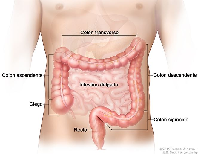 cancer colon y ovario