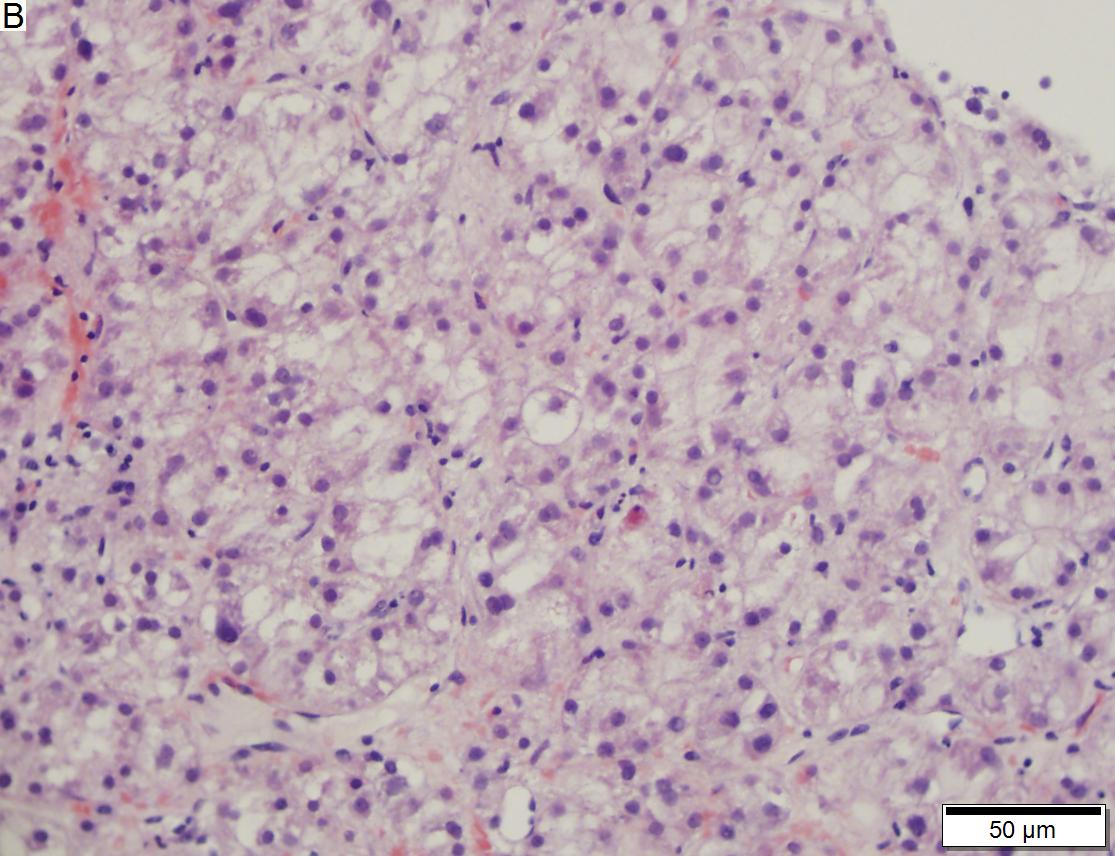 hepatocellular cancer pathology outlines)