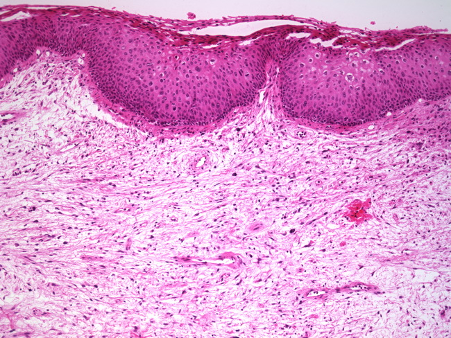fibroepithelial papilloma other term)