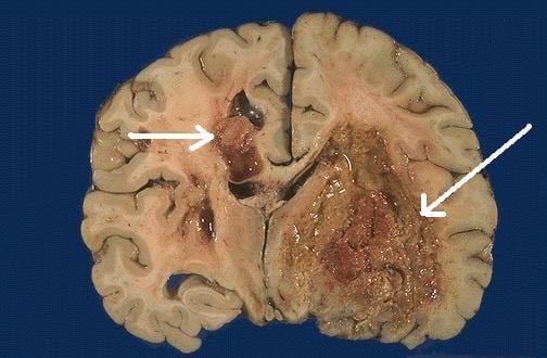 cancer cerebral sintomas finais