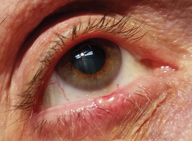 papilloma excision eyelid