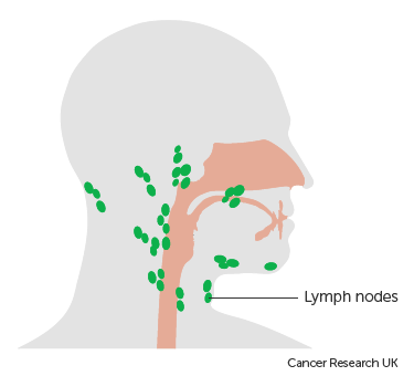 Thyroid cancer surgeries in cervical lymph node metastases