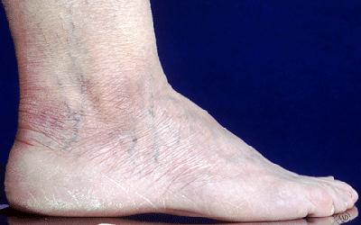 ovarian cancer leg swelling)