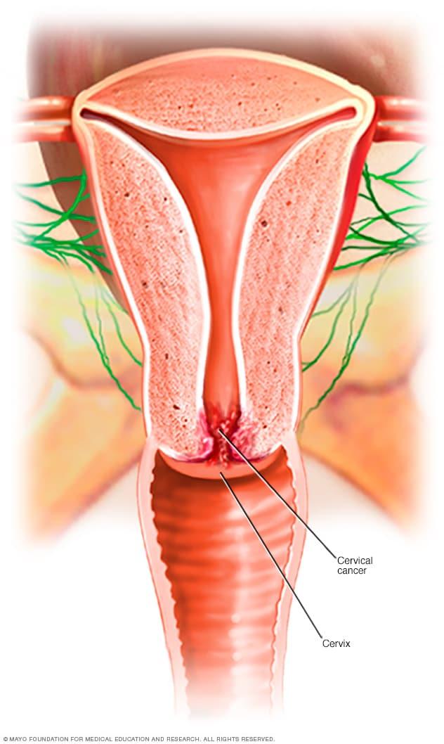 cancer cervical que produce)