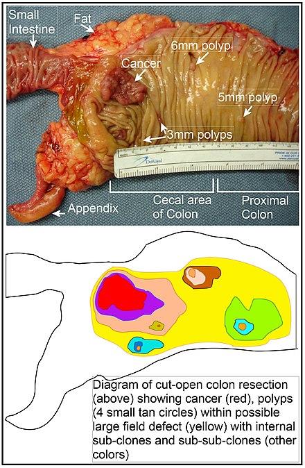 cancerul de colon la copii
