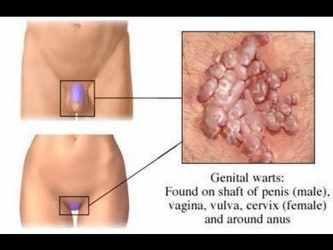 hpv warts get rid of