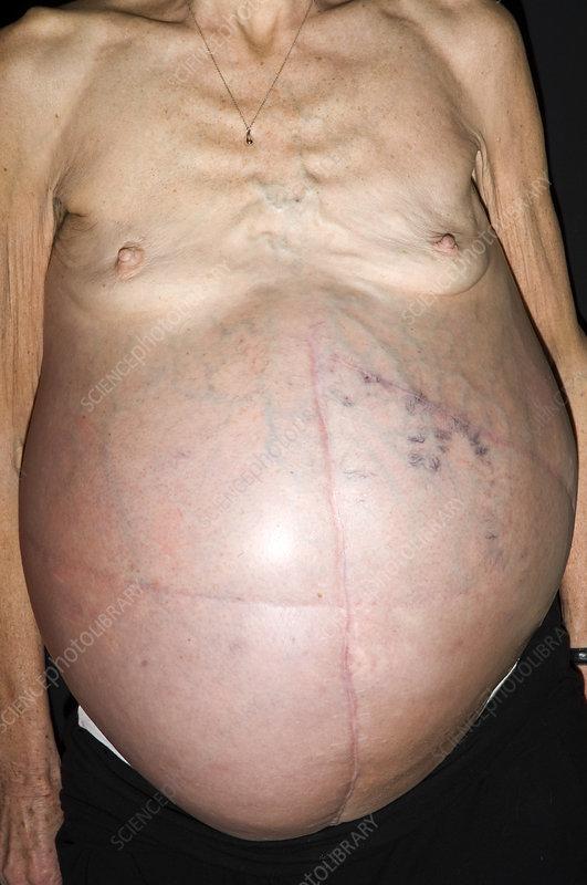 cancere abdominale)