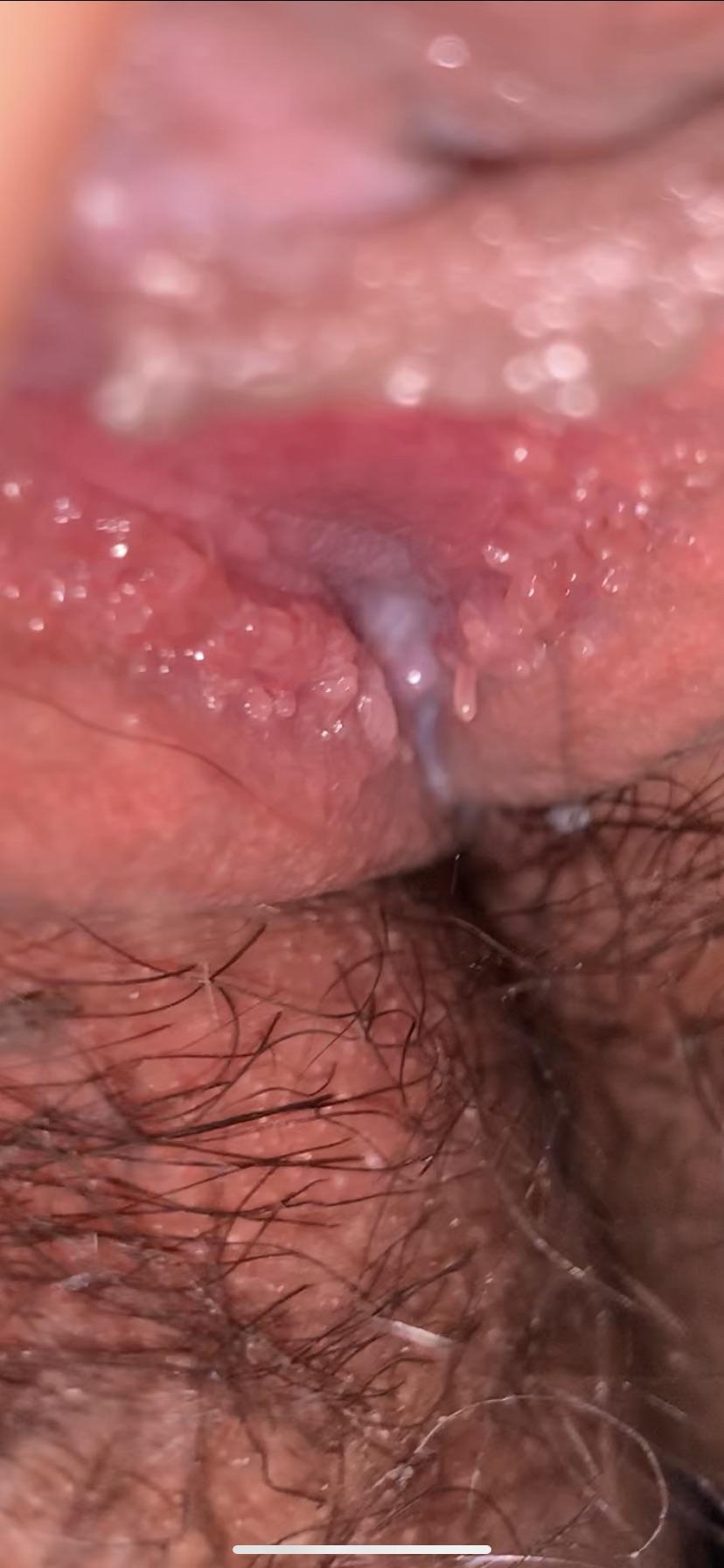 vestibular papillae