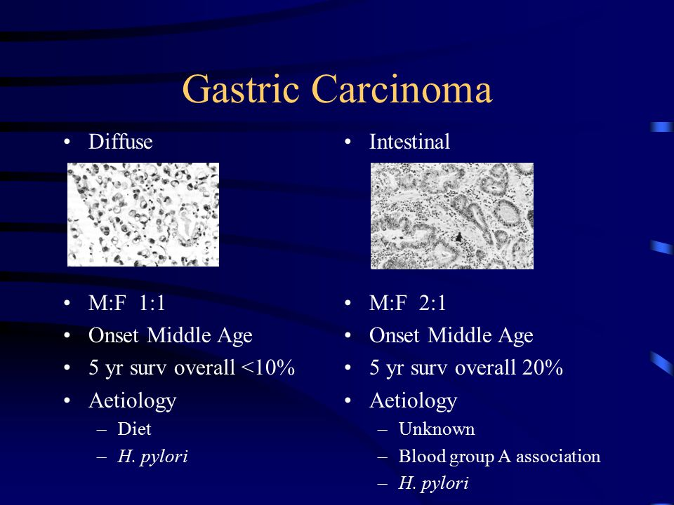gastric cancer diffuse intestinal)