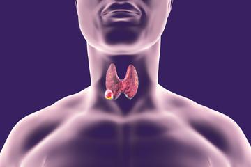 simptome cancer glanda tiroida