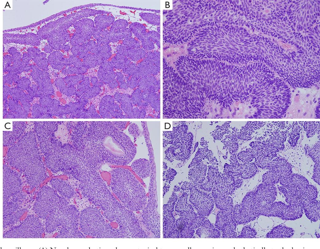 papilloma vescicale e papilloma virus