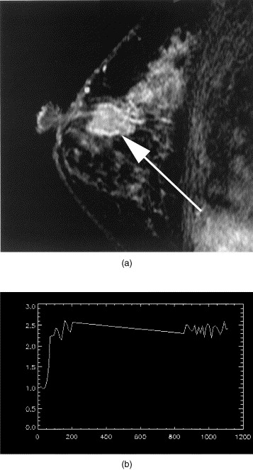 breast papilloma on mri