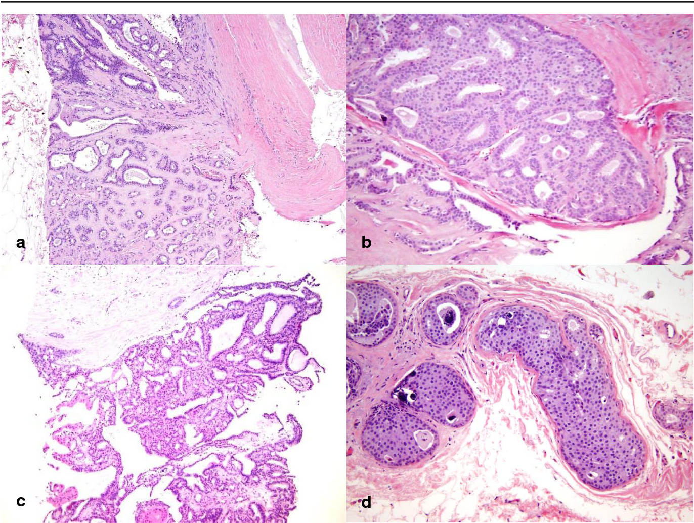intraductal papilloma carcinoma in situ)