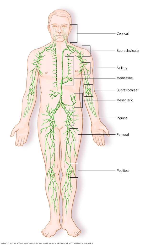 cancer hodgkin sistema linfatico