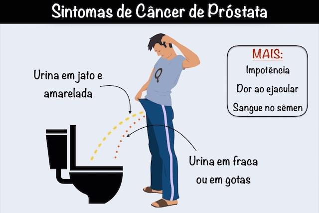 cancer de prostata tem cura