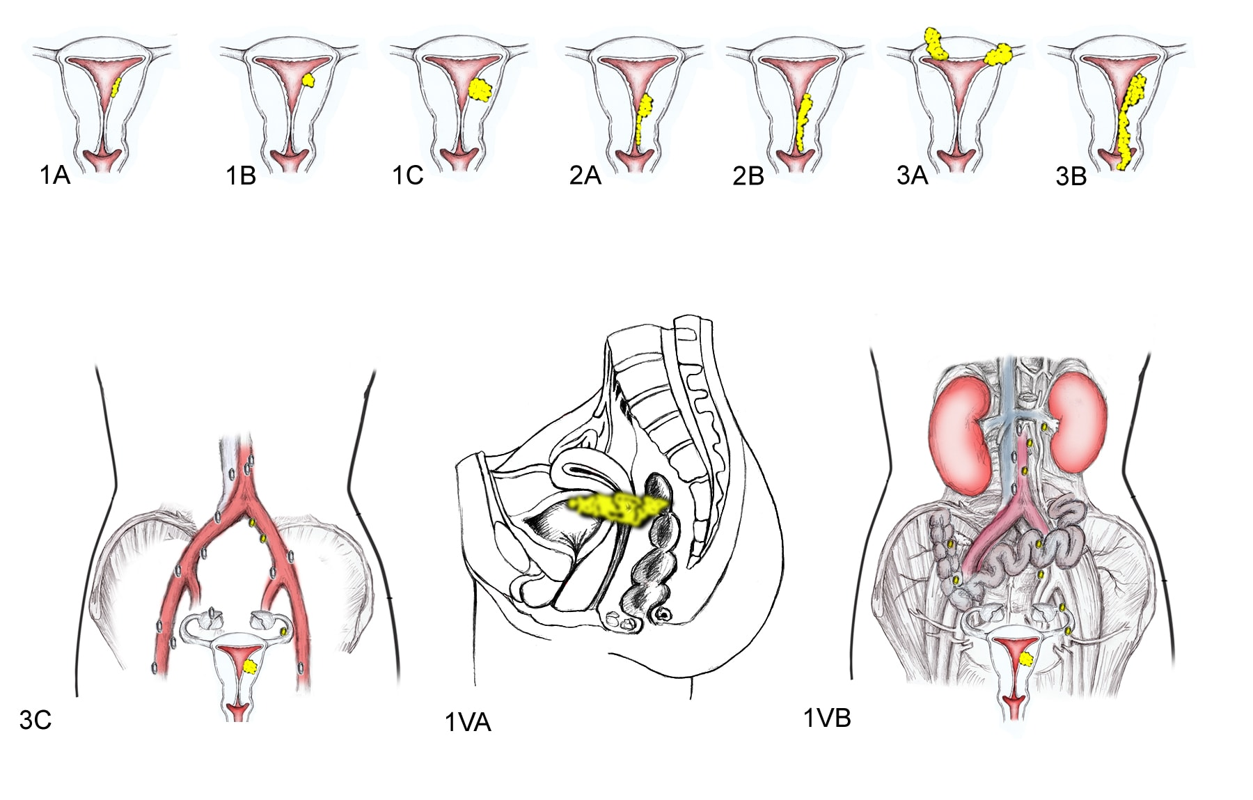 Cancer endometrial - Wikipedia