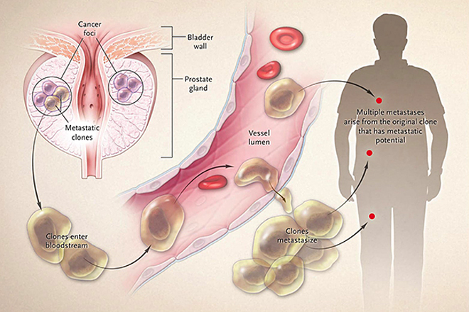 metastatic cancer from prostate)