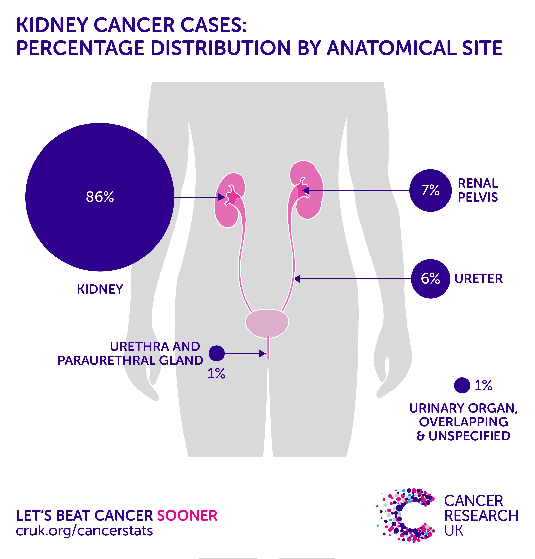 renal cancer risk)