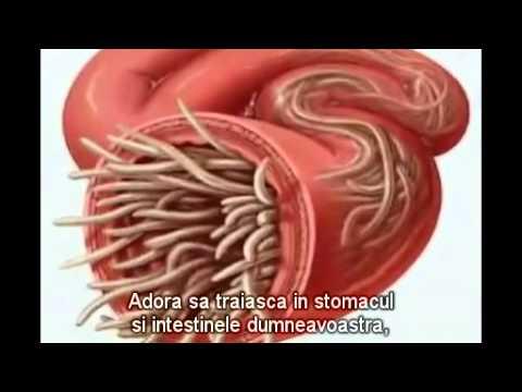 ce sunt parazitii intestinali